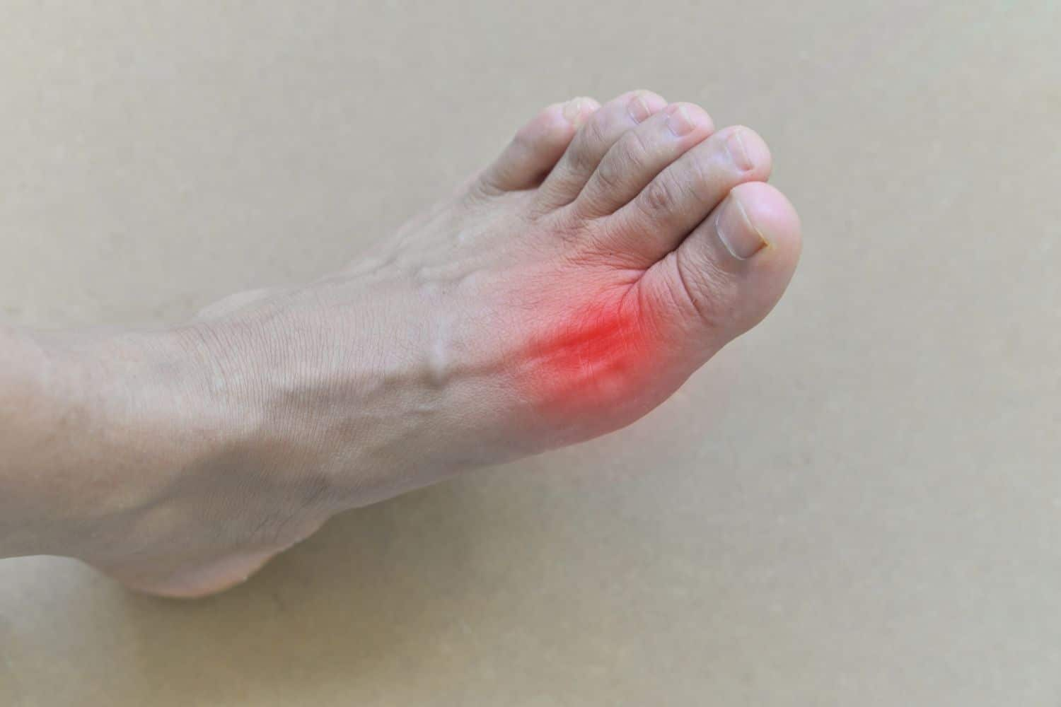 Does Coffee Cause or Prevent Gout